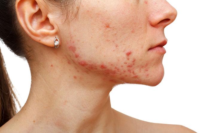 symptôme acné