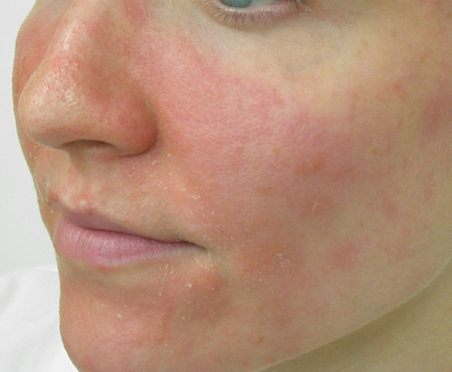 comment calmer eczema