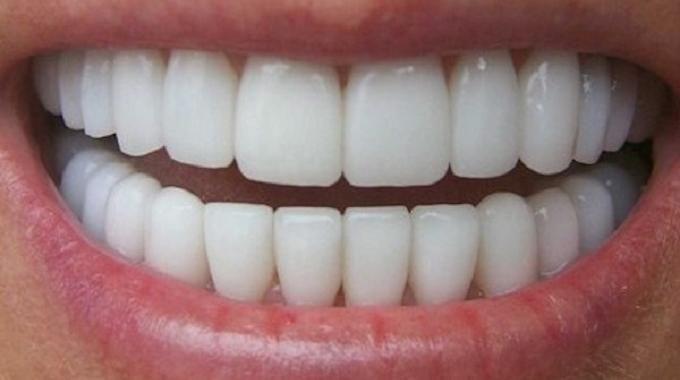 Quelles sont les solutions pour garder les dents blanches et saines