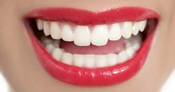 Garder de belles dents blanches