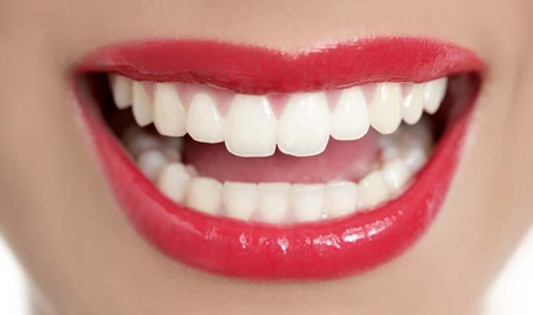 Photo of Quelles sont les solutions pour garder les dents blanches et saines