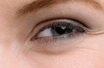 Comment se forment les rides sous les yeux?