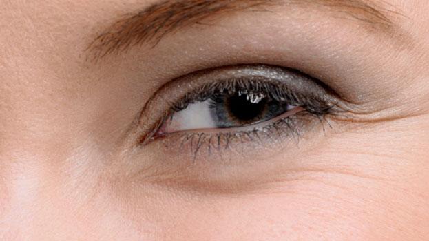 comment eviter les rides des yeux