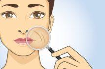 Comment apparaissent les rides autour de la bouche et comment les effacer?