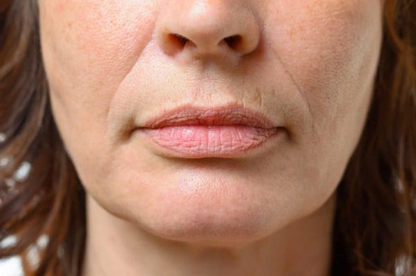 Comment lutter efficacement contre les rides autour de la bouche ?