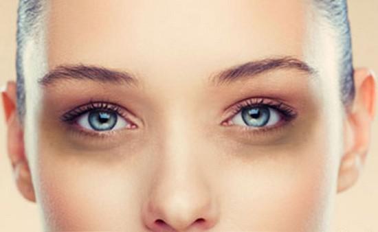 Comment effacer les rides sous les yeux ?